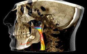 radiografia tac cone beam